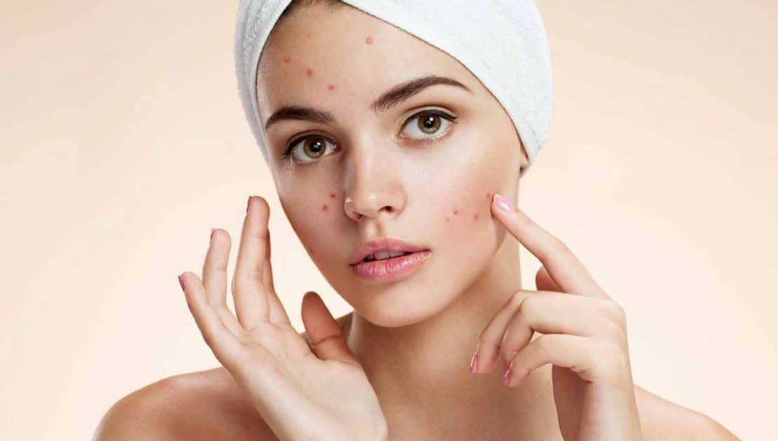 Acne Treatment Carlisle - VL Aesthetics
