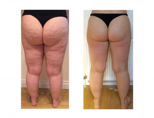 After 8 Lipofirm Bum Lift Treatments at VL Aesthetics in Carlisle (Cumbria)