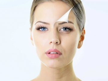 Wrinkles and Fine Lines at VL Aesthetics