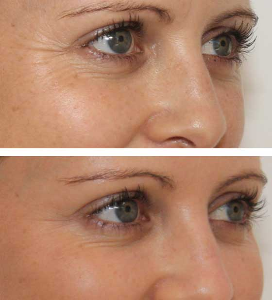 Oxygeneo (Carlisle) - Quickly Remove Signs of Ageing | VL Aesthetics