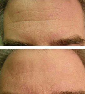 Forehead Wrinkle Treatment With Oxygeneo