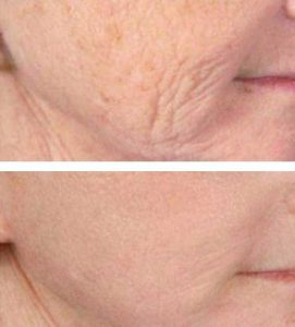 A Woman Removing Wrinkles With Oxygeneo