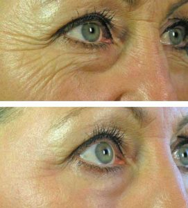 After 8 Oxygeneo Anti Wrinkle Treatments