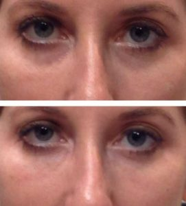 A before after photo of a woman reducing bags under her eyes at VL Aesthetics in Carlisle (Cumbria)