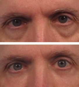 A before after photo of a man getting rid of bags under his eyes at VL Aesthetics in Carlisle (Cumbria)