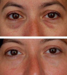 A before after photo of a woman treating bags under her eyes at VL Aesthetics in Carlisle (Cumbria)