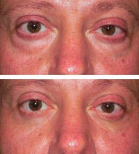 A before after photo of a man removing bags under his eyes at VL Aesthetics in Carlisle (Cumbria)