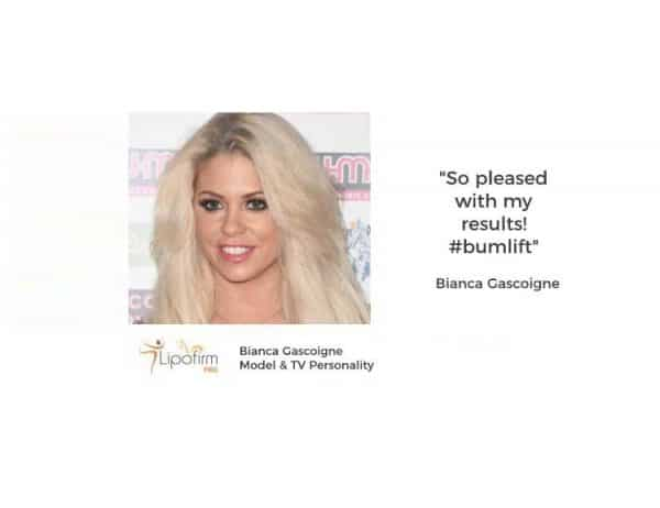 Bianca Gascoigne testimonial on bum lifts with Lipofirm