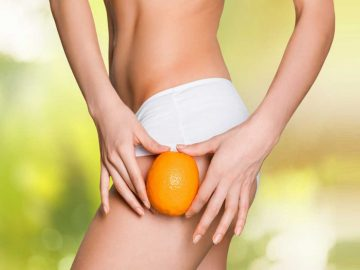 Cellulite at VL Aesthetics