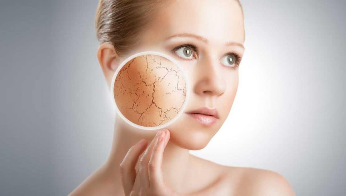 Dull Skin Treatment Carlisle - VL Aesthetics