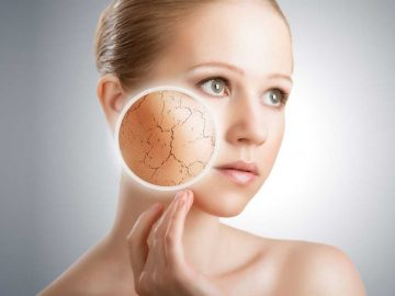 Dull Skin Treatment Carlisle - VL Aesthetics