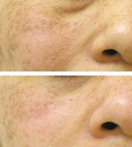 After 1 AlumierMD Chemical Peel