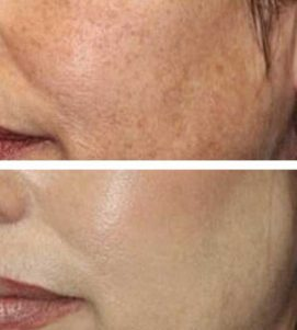 After 3 AlumierMD Chemical Peel