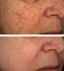 After 4 AlumierMD Chemical Peel