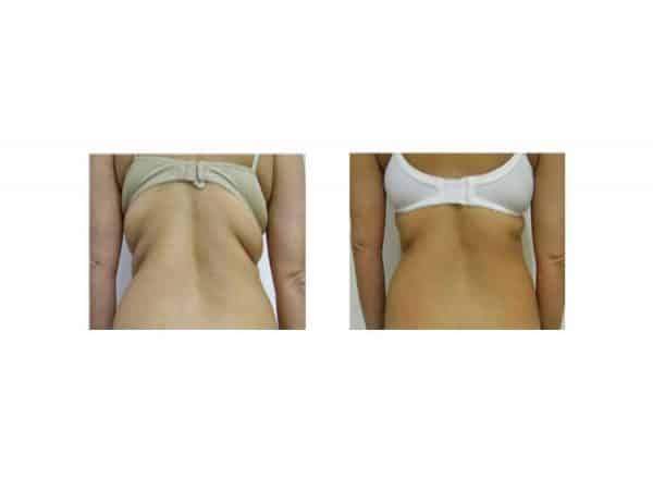 A Woman Losing Back Fat With Lipofirm