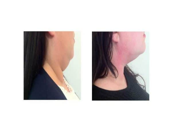 A Woman Losing Her Double Chin Fast With Lipofirm