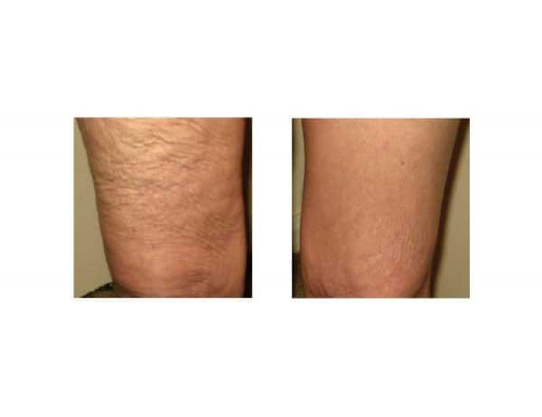 A Woman Getting Rid of Cellulite With Lipofirm