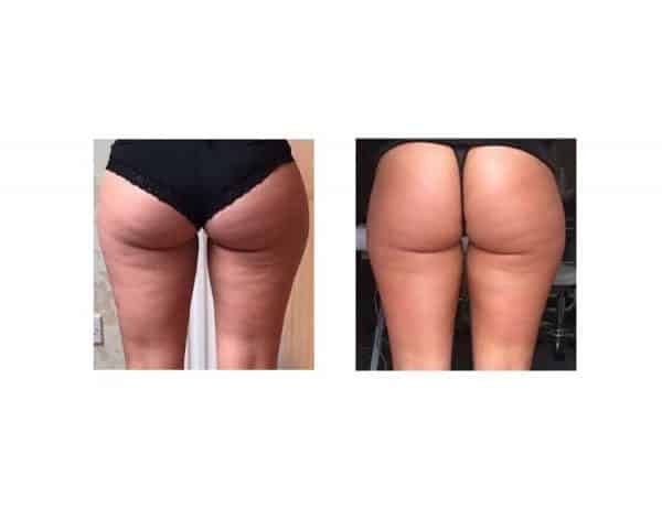 After 1 Lipofirm Pro Bum Lift Treatment at VL Aesthetics in Carlisle (Cumbria)