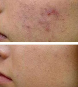 After 1 AQ Derma Stamp Treatment