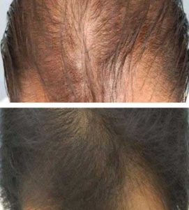 AQ Hair Loss Treatment – After 6 Months