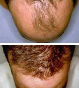 AQ Hair Loss Treatment – After 10 Months