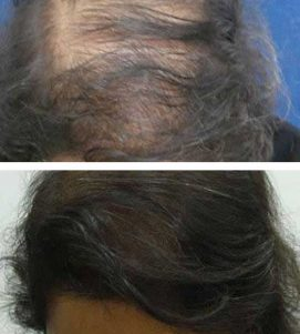 AQ Hair Loss Treatment – After 5 Months