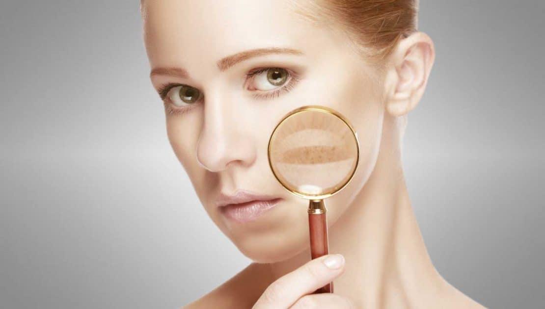 Hyperpigmentation Treatment Carlisle - VL Aesthetics