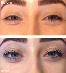 A Before-After Photo of LVL Lashes at VL Aesthetics in Carlisle (Cumbria)