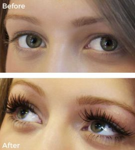 A Before-After Photo of Lash Perfect Eyelash Extensions at VL Aesthetics in Carlisle (Cumbria)