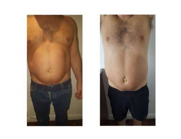 A Man Losing Tummy Fat With Lipofirm