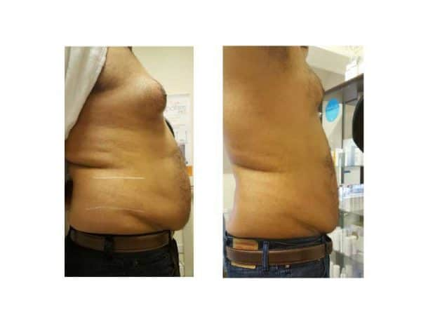 A Man Losing Belly Fat Fast With Lipofirm