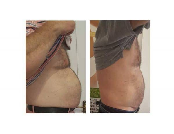 A Man Losing Stomach Fat With Lipofirm