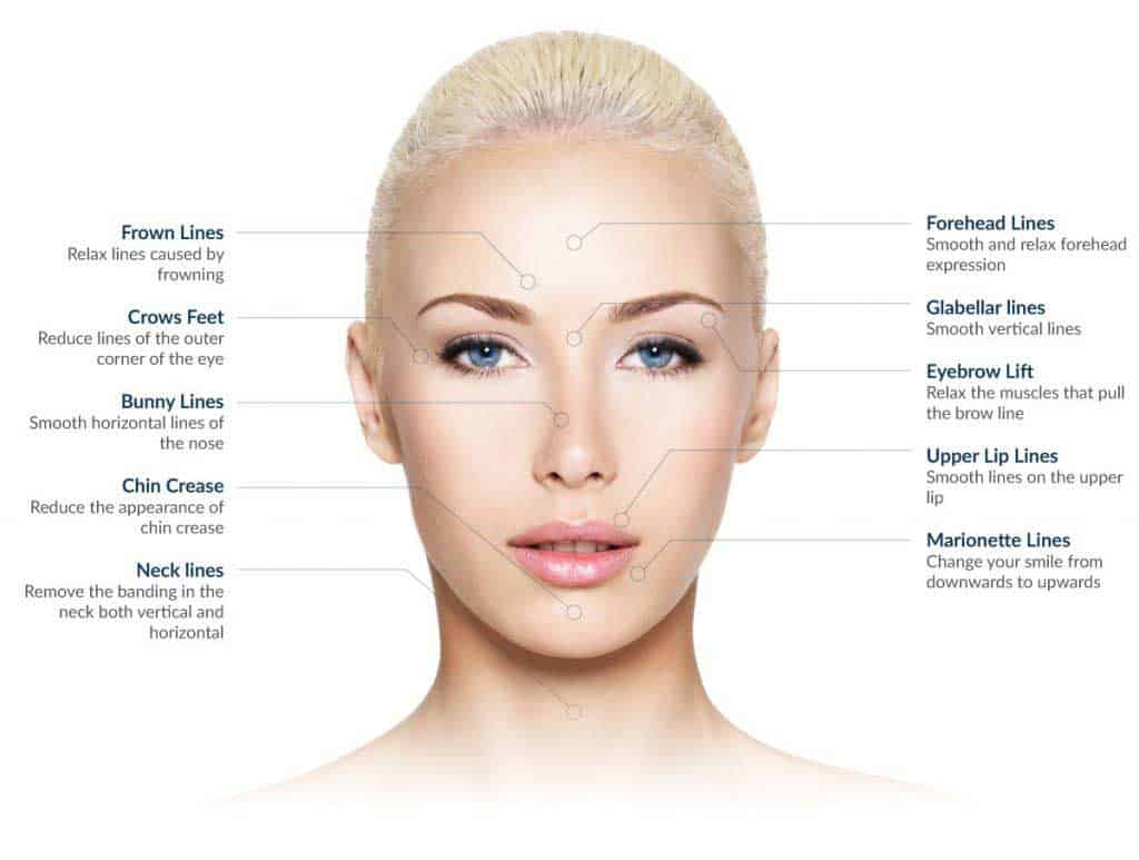 Cosmetic Injectables Treatment Areas at VL Aesthetics