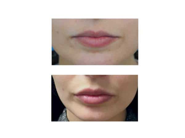 A before and after photo of Lip Fillers in Carlisle – VL Aesthetics