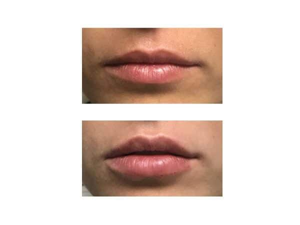 Lip Fillers Before and After (Juvederm) - VL Aesthetics in Carlisle (Cumbria)