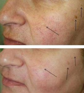 After 4 Oxygeneo Treatments