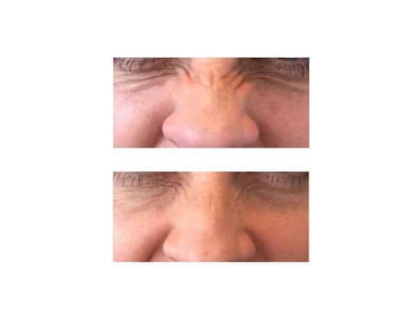 Botox for Bunny Lines Before and After