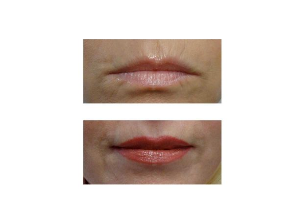 A before after photo of Lip Fillers at VL Aesthetics in Carlisle (Cumbria)