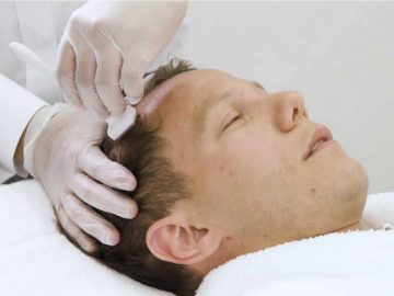 A VL Aesthetics' Beauty Therapist Administering Microdermabrasion For Hair Loss