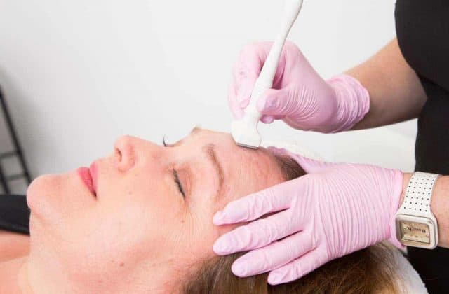 Micro Needling at VL Aesthetics