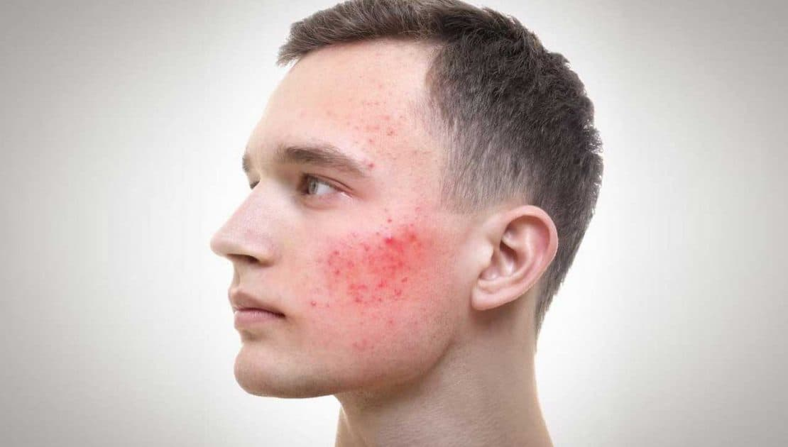 Acne Treatment for Men at VL Aesthetics