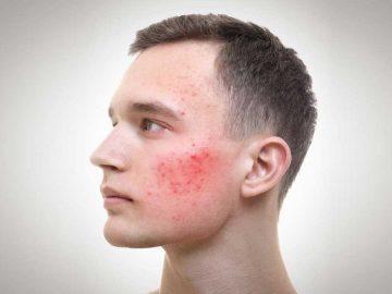 Acne Treatment for Men at VL Aesthetics