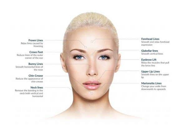 Treatment Areas at VL Aesthetics