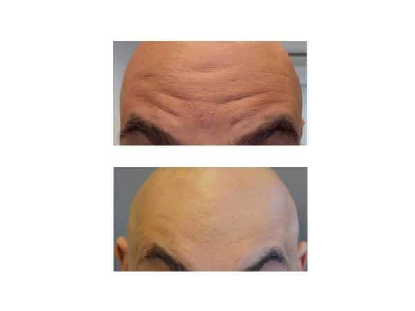 Forehand Wrinkles Before and After (Juvederm)