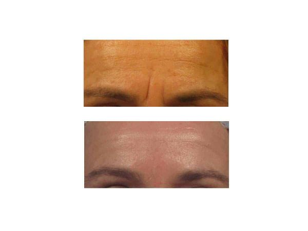 Frown Lines Before and After (Juvederm)