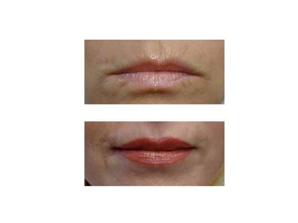 Lip Lines Before and After (Juvederm)