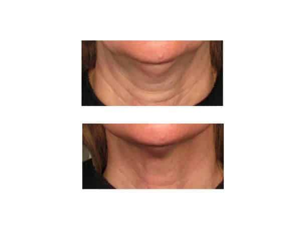 Neck Lines Before and After (Juvederm)