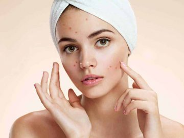 Anti-Acne Facial Carlisle - VL Aesthetics