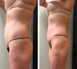 Fast weight loss for a woman using Ultratone at VL Aesthetics in Carlisle (Cumbria)