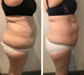 A woman losing weight quickly with Ultratone at VL Aesthetics in Carlisle (Cumbria)